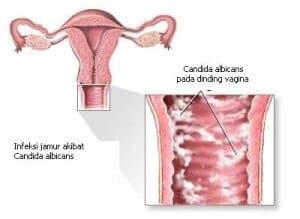 keputihan pada ibu hamil source puputprita95 com