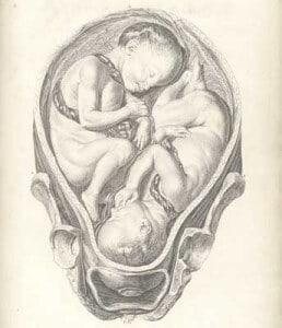 cara mendapatkan bayi kembar