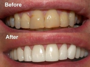cara memutihkan gigi 2