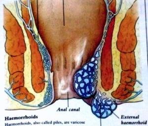 cara menyembuhkan ambeien secara alami tanpa obat
