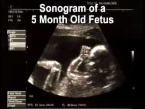 Perkembangan Janin Usia 5 Bulan, janin 5 bulan, janin usia 5 bulan, Janin, gambar janin 5bulan, bayi dlm kandungan usia 5 bln sering bergerak, perkembangan janin usia 5 bulan, perkembangan janin 5 bulan