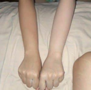 efek sampng bleaching kulit, efek samping bleaching kulit yang paling parah