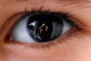 cara memutihkan bola mata secara alami cara memutihkan bola mata secara alami