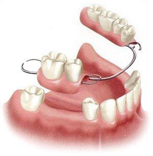 Flipper Teeth Flipper Teeth
