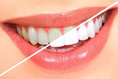 Teeth Whitening Teeth Whitening Teeth Whitening