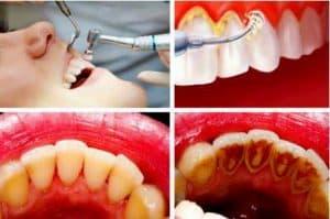 Cara menghilangkan karang gigi dengan teknik scale
