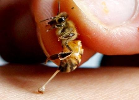 cara mengobati sengatan lebah cara mengobati sengatan lebah