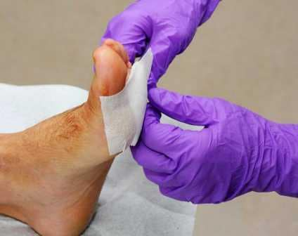 penyebab penyakit gula kaki