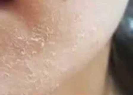 Sabun Untuk Kulit Kering Kusam Bersisik wajah