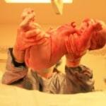 Bayi Lahir Tidak Menangis, Apa Penyebab dan Cara Mengatasinya?
