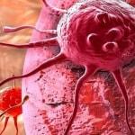 Penyebab Kanker Serviks, Deteksi Dini Bisa Menyelamatkan Anda