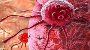 Penyebab Kanker Serviks