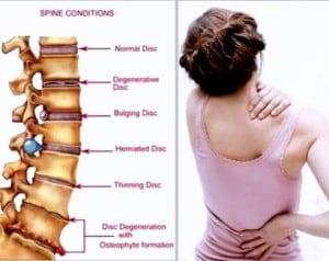 cara mengobati sakit pinggang yang ampuh efektif mujarab cepat