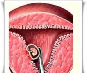 hamil pasca kuret tanpa haid, langsung hamil pasca kuret tanpa haid, tips hamil pasca kuret, mengalami hamil pasca kuret tanpa haid, merawat diri pasca kuret