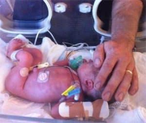 hamil 32 minggu lahir prematur 1,8kg
