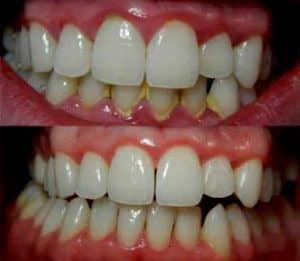 Cara membersihkan karang gigi Cara membersihkan karang gigi Cara membersihkan karang gigi secara alami