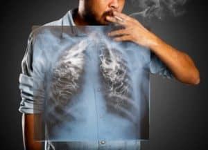 efek samping vapor vape rokok elektrik