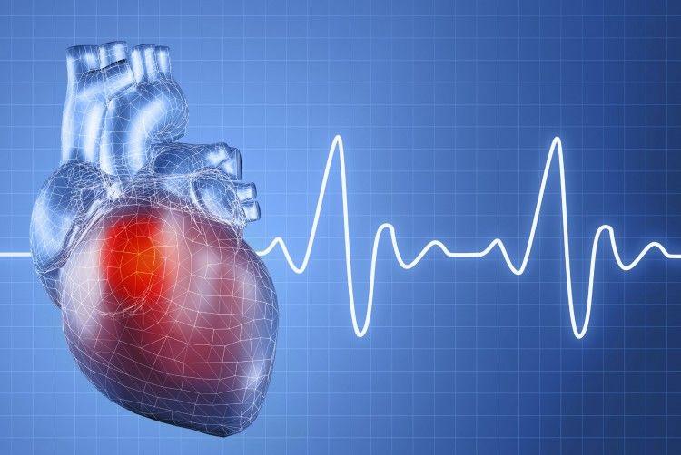 macam jenis penyakit jantung