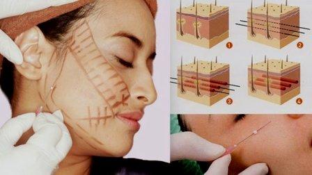 efek samping tanam benang di kulit efek samping tanam benang di kulit efek samping tanam benang di kulit