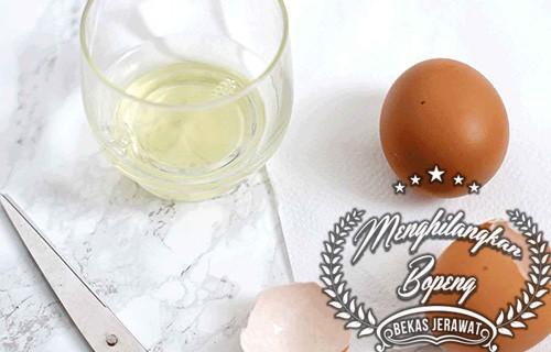 Cara Menghilangkan Bopeng Bekas Jerawat dengan Putih Telur