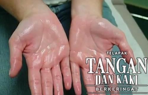 Penyebab Telapak Tangan pada Orang Dewasa
