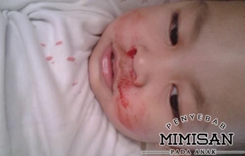 Penyebab Mimisan Pada Anak udara kering