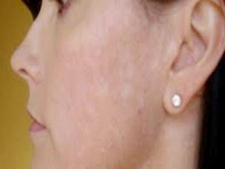 cara menghilangkan panu di wajah perempuan