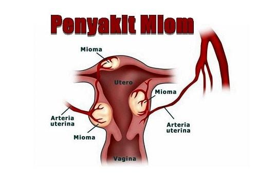 cara mengatasi miom saat hamil