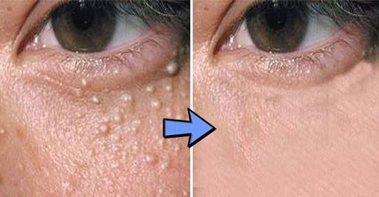 cara menghilangkan milia di wajah