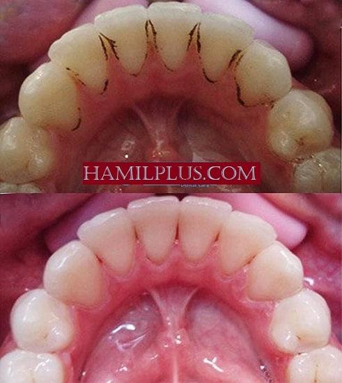 pantangan setelah membersihkan karang gigi pantangan setelah membersihkan karang gigi, proses pembersihan karang gigi, gigi ngilu setelah scaling, pantangan sesudah membersihkan karang gigi