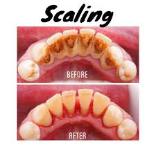 scaling gigi di puskesmas, biaya scaling gigi di puskesmas 2018, manfaat membersihkan karang gigi di puskesmas 2018, scaling gigi before after