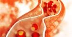Pantangan Makanan Asam Urat dan Kolesterol Tinggi Usia >40 Tahun