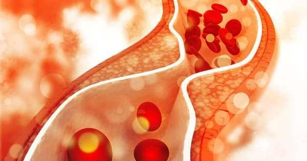 pantangan makanan asam urat dan kolesterol