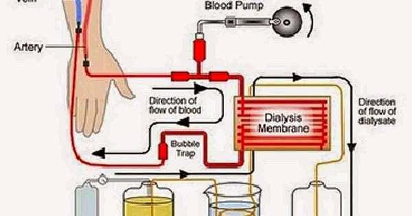 pantangan makanan cuci darah