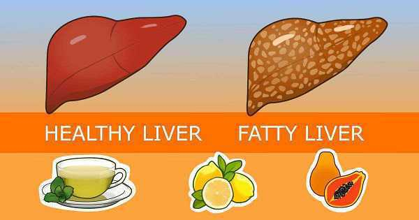 pantangan makanan fatty liver, cara mengobati fatty liver, jenis susu untuk penderita liver pantangan makanan fatty liver cara mengobati fatty liver, jenis susu untuk penderita liver
