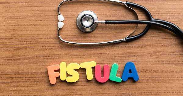 pantangan makanan fistula ani (fistula ani adalah, biaya operasi fistula ani, cara BAB setelah operasi, obat fistula ani di apotik)