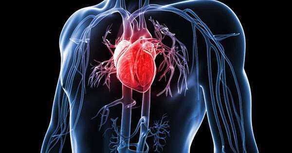 pantangan makanan jantung bocor (apakah jantung bocor bisa sembuh, biaya operasi jantung bocor)