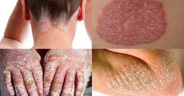jenis penyakit kulit karena jamur, eksim dan yang menular