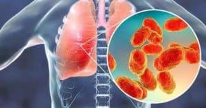 Penyakit Pneumonia (Gejala, Penyebab dan Cara Penanganan)