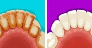 Cara Menghilangkan Plak Gigi yang Membandel Secara Alami