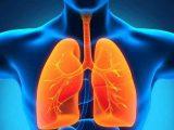 pantangan makanan flek paru paru (minuman alami pembersih paru-paru, cara mengobati flek paru paru secara alami)
