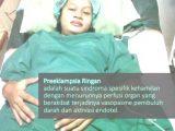 preeklampsia ringan 3